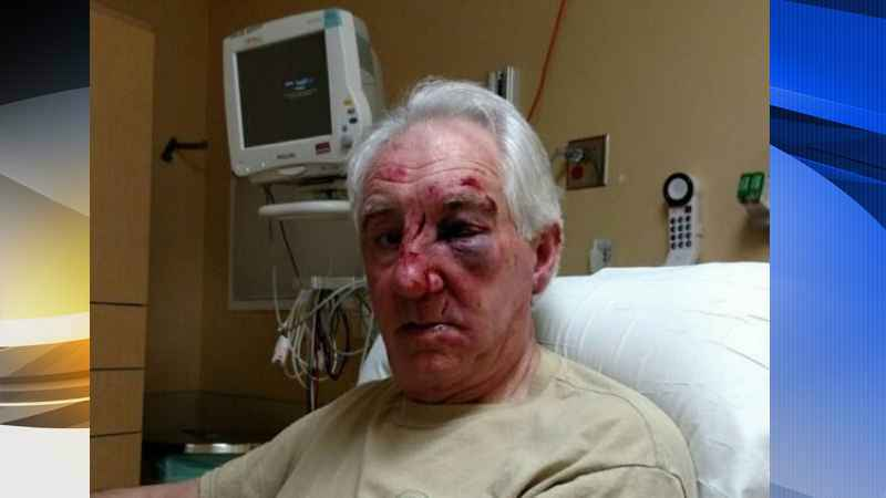 Anoka County Sheriff: Man Brutally Attacked After Road Rage Incident