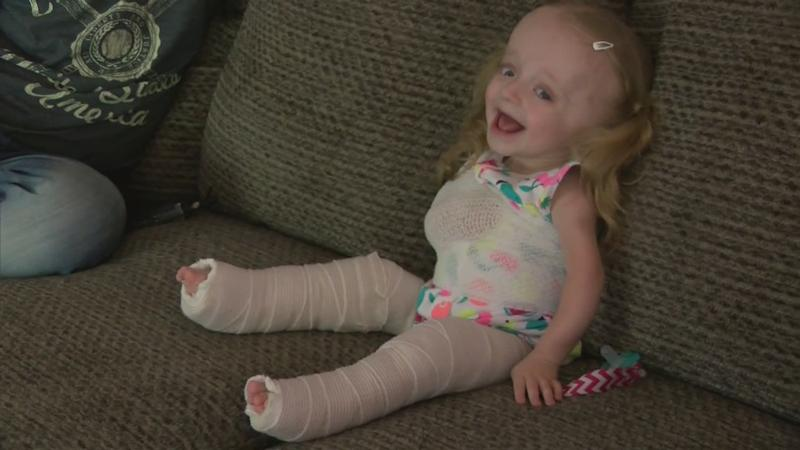 Unbreakable Hope: Toddler Receives Life-Changing Rod Surgery