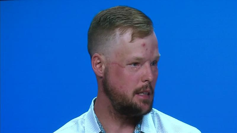 Face transplant recipient transforming lives with a message of hope