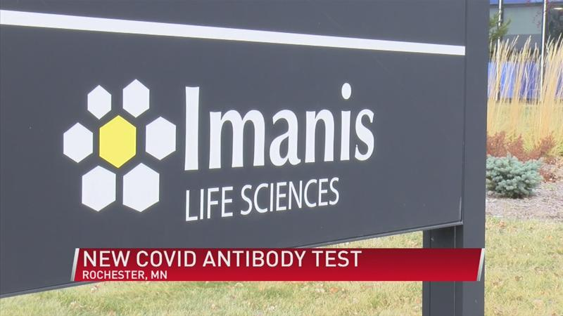 New COVID-19 antibody test developed in Rochester