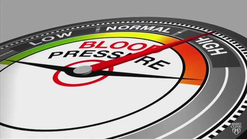 New Blood Pressure Guidelines